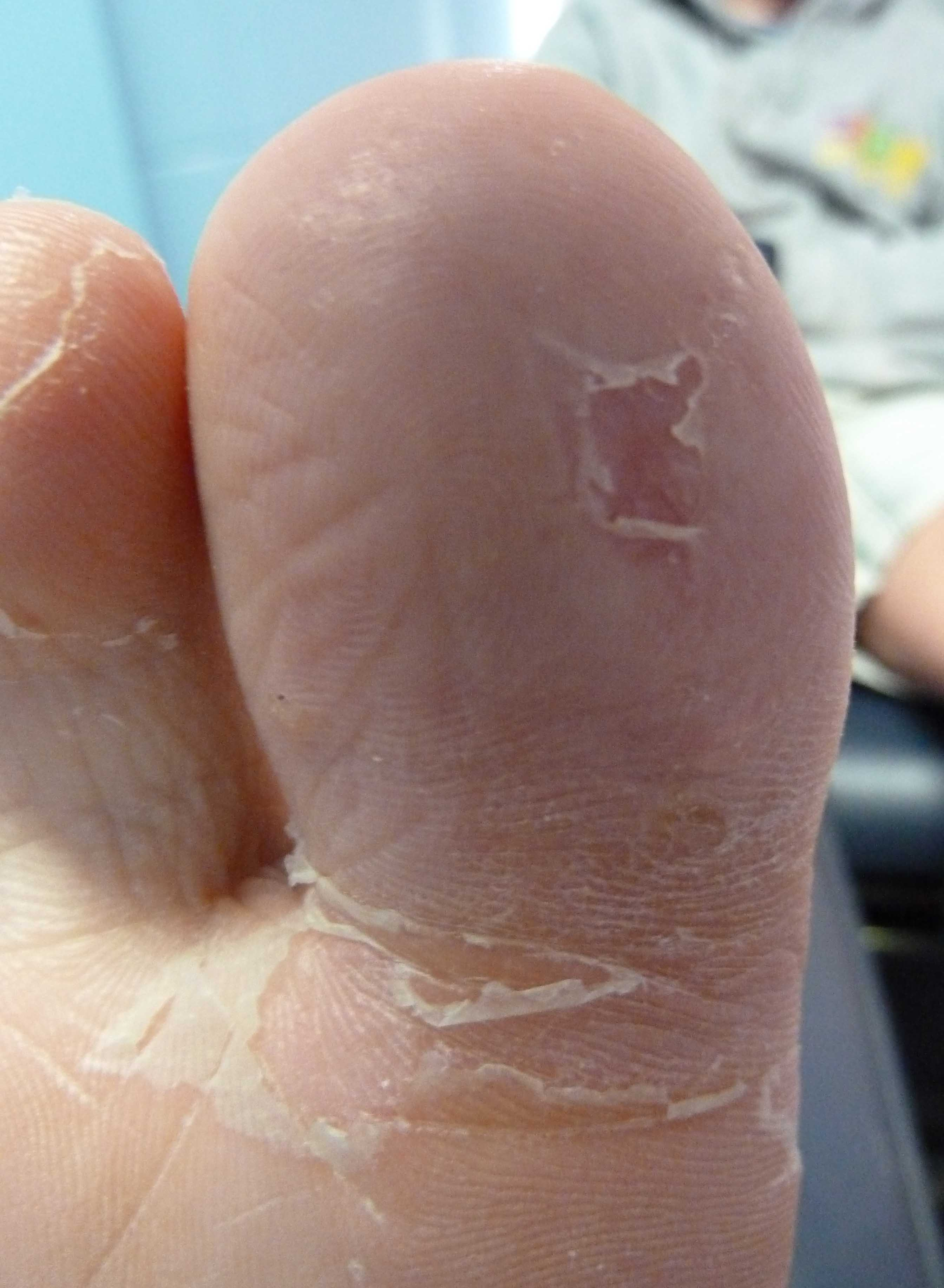 Warts and Plantar Warts -Topic Overview - WebMD