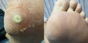 Plantar Wart Treatment Before and After